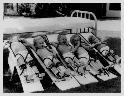 Polio-patients-on-boards-at-the-Texas-Scottish-Rite-Hospital-for-Children-in-Dallas-Texas